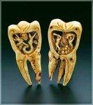 علاج آلام الأسنان بأسرع طرق منزلية